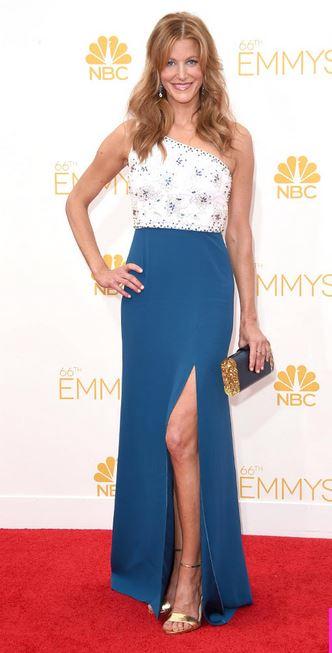 2014-Emmys-Anna-Gunn